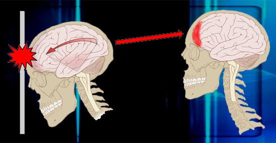Se bater a cabeça não pode dormir, senão não acorda mais - verdade ou mentira - Capa