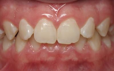 Niềng răng khớp cắn sâu giai đoạn nào đau nhất?