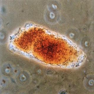 idrarda hemoglobin silendirleri