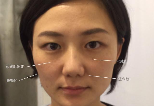 彤顏診所-藝術面雕-3D聚左旋乳酸-童顏針-凹臉-蘋果肌-3d聚左旋乳酸價格-Sculptra