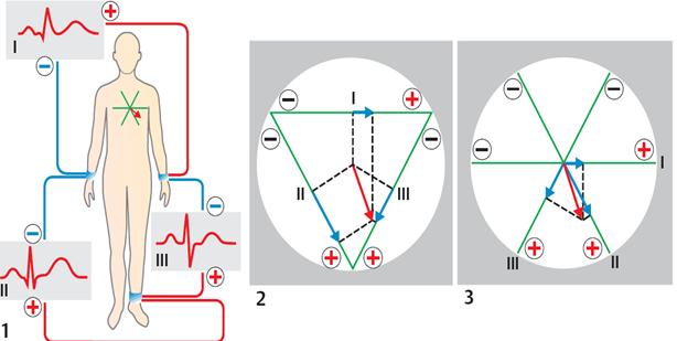 Electrocardiogram | Geoffrey E. Reed life