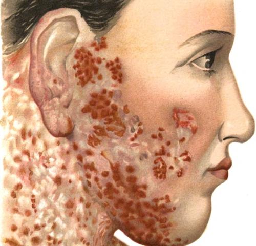 Hi Everyone Penyakit Lupus