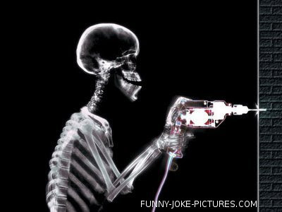 Hilarious X-Ray Picture Images