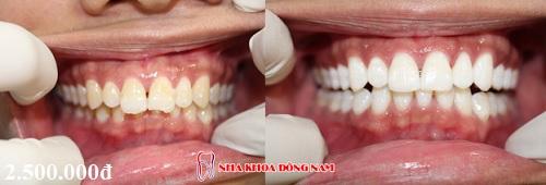 các vấn đề chưa biết khi tẩy trắng răng tại nha khoa -5