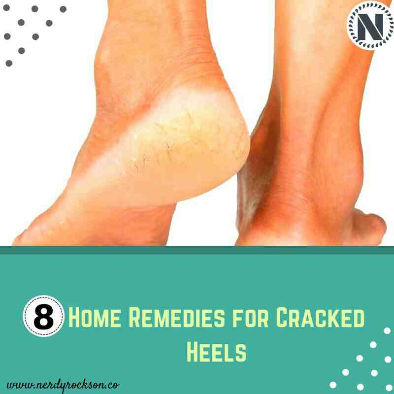 8 Home Remedies for Cracked Heels