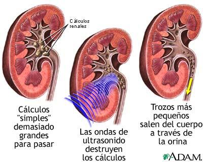 Tratamiento piedras riñones