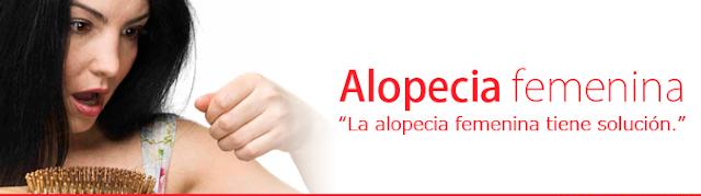 ALOPECIA ANDROGÉNICA FEMENINA (CALVICIE FEMENINA)