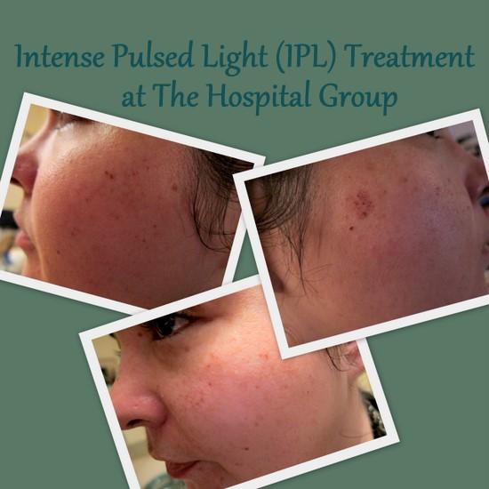 Treatment Tales: Intense Pulsed Light (IPL) Laser Skin ...
