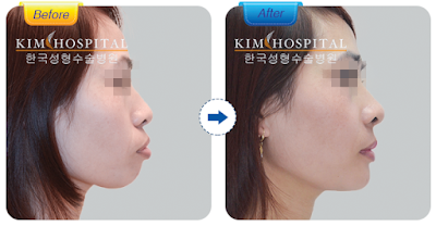 Hiệu quả phẫu thuật hàm hô không cần niềng răng tại nha khoa KIM