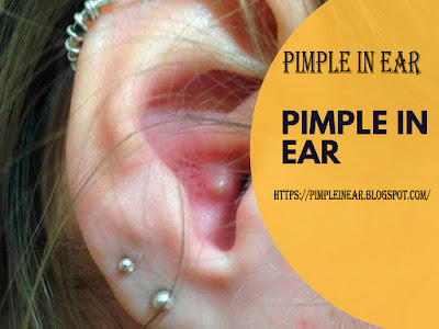 pimple in ear - sebaceous cyst in ear
