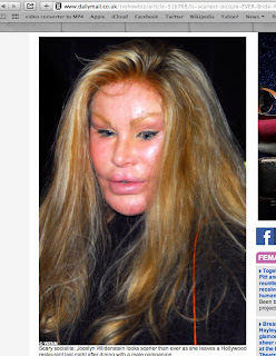 Plastic surgery disasters - Jocelyn Wildenstein
