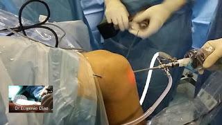 Artroscopia para inserción del nuevo Ligamento Cruzado