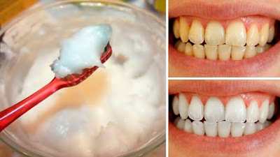 Brush Your Teeth With This Mixture And Say Goodbye To Tartar And Caries Forever