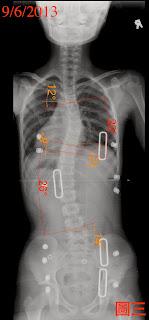 脊椎側彎, 脊椎度數, 脊椎側彎矯正, 脊椎側彎治療, 脊椎側彎矯正成功案例, 脊椎側彎復健, 脊椎側彎 推薦, 脊椎側彎 台中