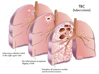 Obat Tradisional TBC Akut