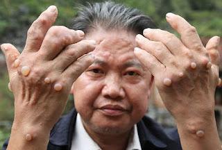 Penghilang Bintil Kutil di Kelamin, Artikel Obat Mengobati Kutil di Kemaluan, Beli Obat Alami Kutil Kelamin De Nature Indonesia