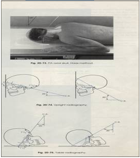 Teknik Radiografi Foramen Magnum