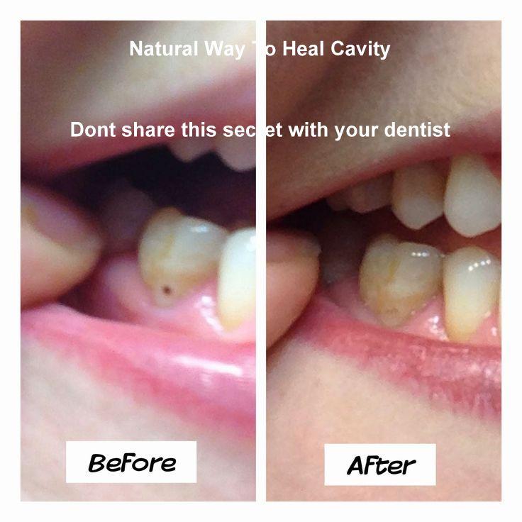 Natural Cavity Cure