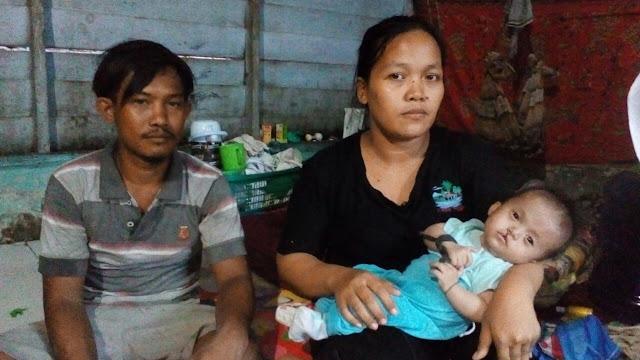 Zikri balita penderita gizi buruk asal Tanjungbalai saat dipangku ibunya.