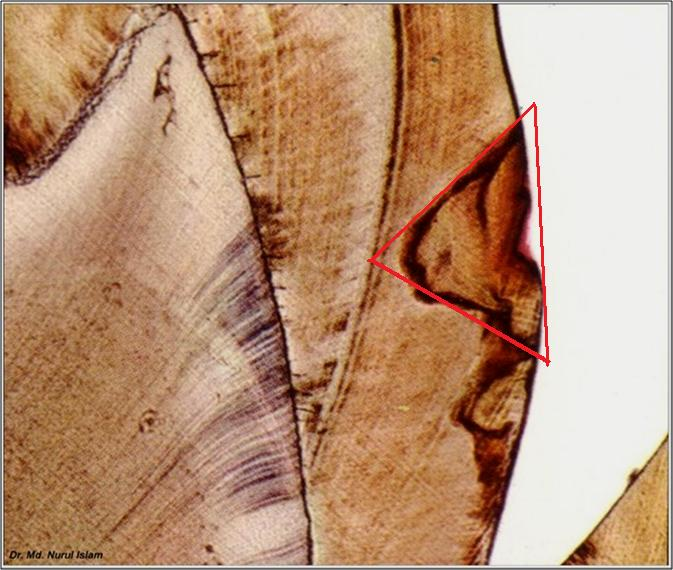 Ground section demonstrating smooth surface enamel caries - apex extending towards the ADJ