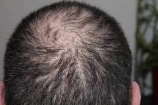 Future of Balding Treatments
