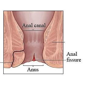 My Family Medicine Practice: Brief Summary About Anal Fissure