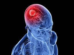 Pengobatan Ampuh Untuk Sembuhkan Kanker Otak Yang Mematikan Tanpa Operasi