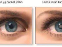 Inilah Obat Tetes Mata yang Dapat Menyembuhkan Katarak Tanpa Perlu Operasi