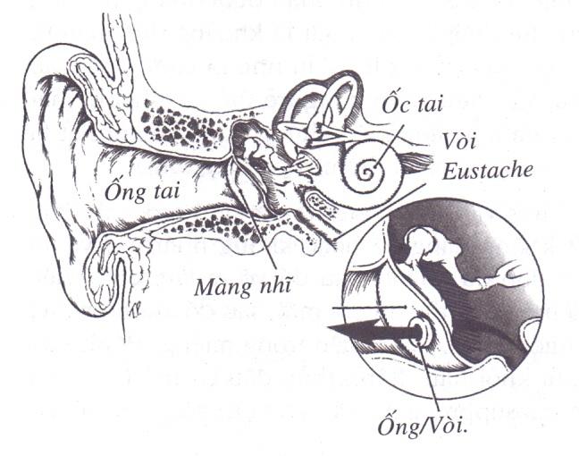 Bị viêm tai phải làm sao?