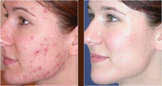 Laser Acne Scar Removal Reviews