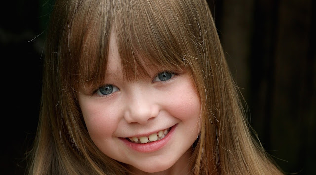 Girl with bangs that doesnt cause amblyopia