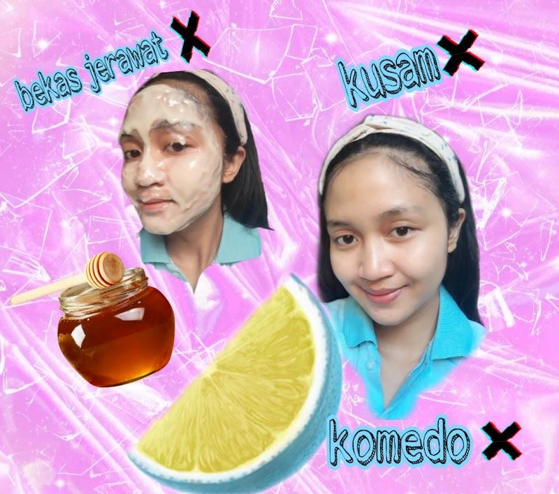 DIY : Masker Madu dan Lemon Bersihkan Komedo dan Mencerahkan Wajah