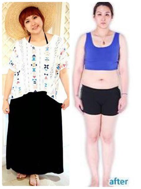 不復胖, 生酮飲食, 有效減肥, 局部瘦身, 美麗好診所, 專業減重, 減肥, 減肥門診, 減肥診所, 減肥藥.減肥, 瘦小腹, 瘦身,