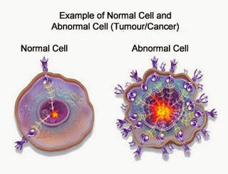 Obat Tumor ini AMPUH Obati Semua Jenis Tumor Tanpa Operasi