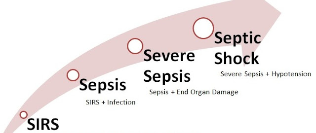 Coding for Sepsis, Severe Sepsis and Septic shock in ICD 10