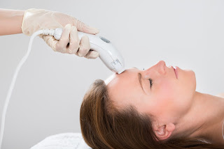 Radio Frequency RF Skin Tightening