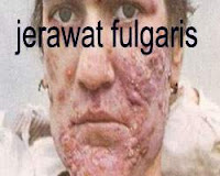 jerawat fulgaris