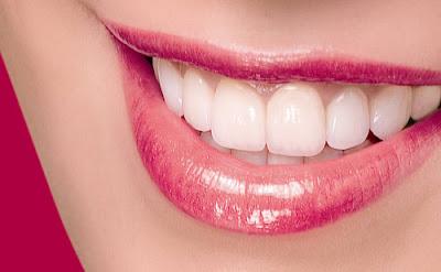 Có nên đi tẩy trắng răng không