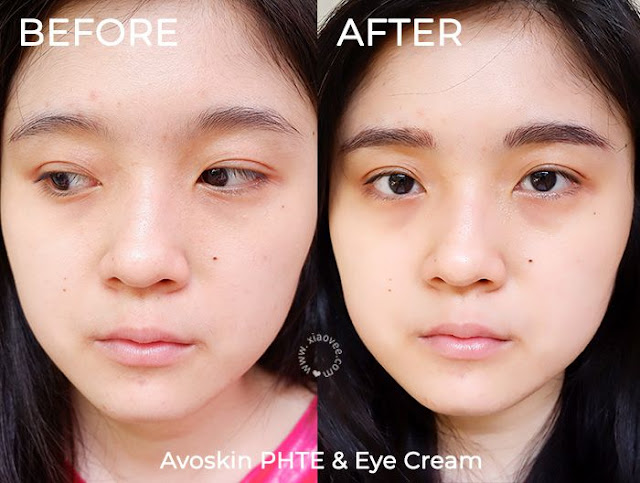 Avoskin Perfect Hydrating Treatment Essence ( PHTE ) review, Avoskin Intensive Nourishing Eye Cream review, Avoskin Review, Review Avoskin Indonesia, Avoskin PHTE Before After