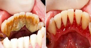 وصفه سحرية منزلية للتخلص من رواسب ووسخ الاسنان