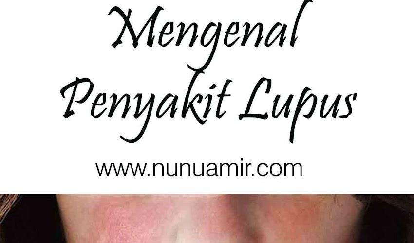 Mengenal Penyakit Lupus