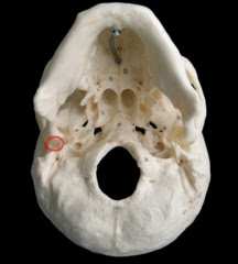 Petrotympanic fissure - Pictures, Skull, Chorda tympani, Petrosquamous fissure