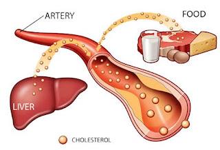 Tanaman Obat Tradisional Kolesterol dan Darah Tinggi Paling Mujarab