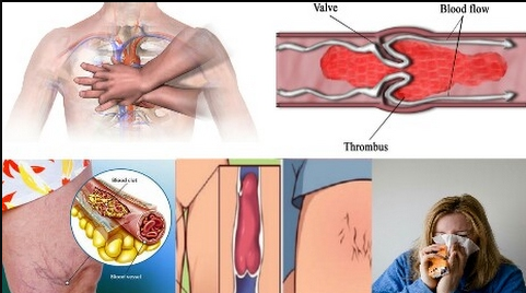 Six Signs That You Have A Blood Clot