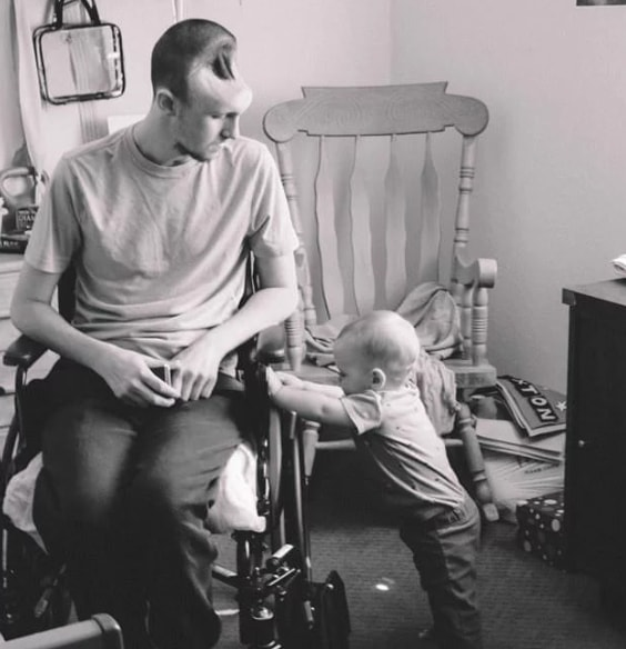 Energy drinks leave new father with hole in his skull, fighting for his life