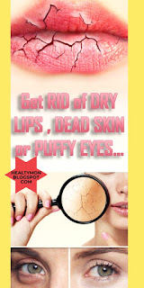 Get Rid of dry lips dead skin or puffy