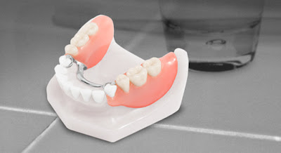 removable cast paritial denture to replace missing natural teeth.
