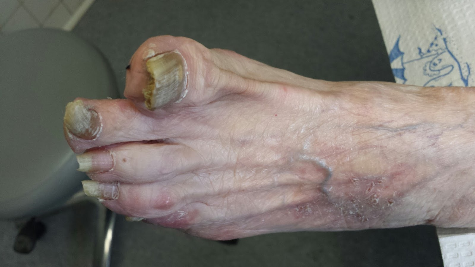 Pictures of infected toes - Awesome Nail