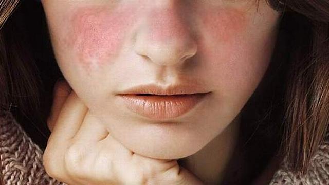 Anda Pernah Mengalami 7 Hal Ini? Hati-hati Bisa Jadi Gejala Penyakit Lupus