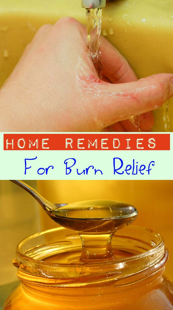 Surprising Home Remedies for Burns | How to Treat a Burn